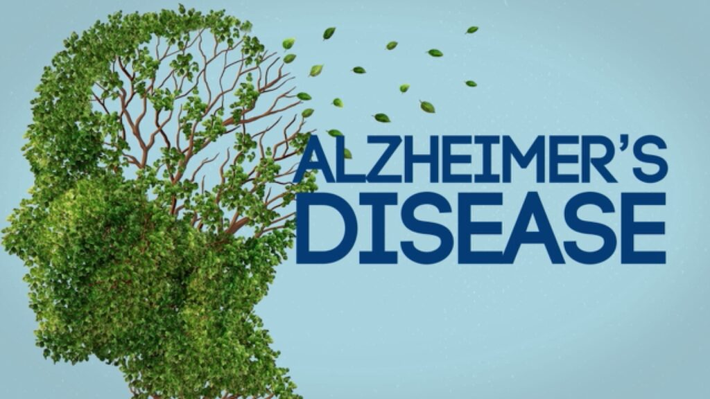 Fish is also an important diet for your brain. Moderate intake of seafood is associated with a lower risk of Alzheimer's disease