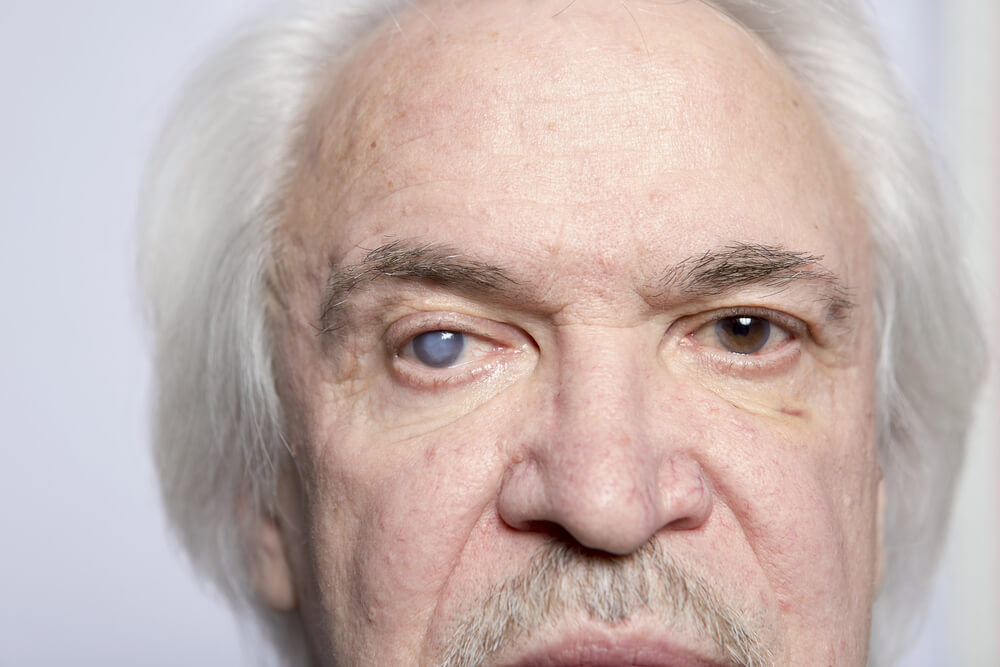 White Cataracts